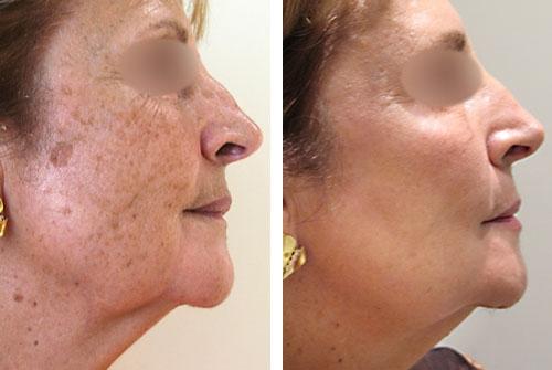 Le modèle avec la pigmentation de la peau