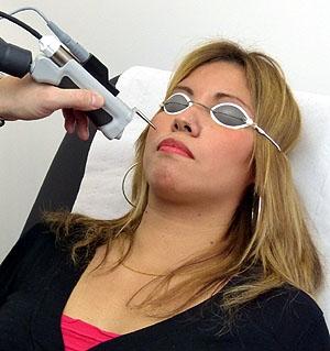 Epilation laser Vernes Dermato-laser