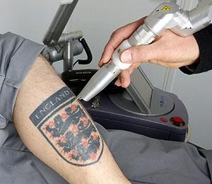 Laser pigmentaire pour le détatouage Vernes Dermato-laser