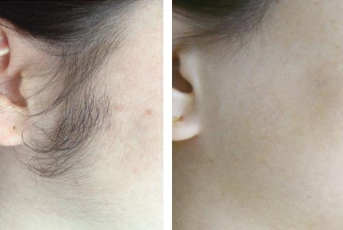 Photo avant /après d'épilation au laser
