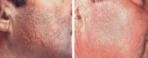 Photo avant /après de traitement des rougeurs au laser