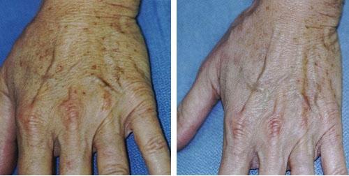 Photo avant /après traitement des taches pigmentaires au laser